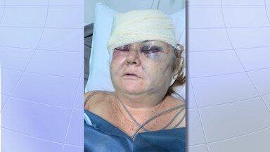 Idosa é espancada por dupla em assalto em São José - Criminosos armados pularam o portão e invadiram a casa dela na noite de segunda (17). O marido da vítima estava no local, mas não foi agredido. Ninguém foi preso.