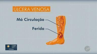 Pesquisadores do Instituto de Física de São Carlos desenvolvem fórmula para tratar úlceras - Produto é a base de biocelulose e pode ajudar na cicatrização em idosos e diabéticos.