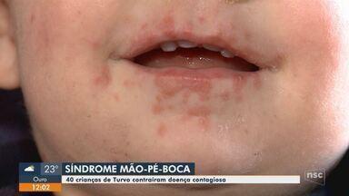 Cerca de 40 crianças contraem doença e deixam pais preocupados em Turvo - Cerca de 40 crianças contraem doença e deixam pais preocupados em Turvo