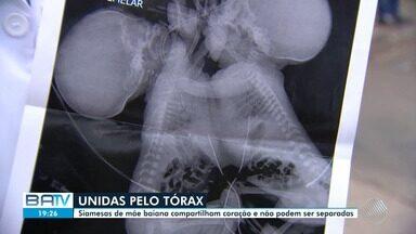Gêmeas siamesas estão internadas em UTI do Hospital Materno-Infantil em Goiânia - Meninas nasceram com 34 semanas de gestação e, juntas, pesam três quilos.