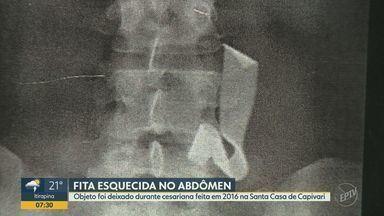 Mulher descobre que estava com fita cirúrgica esquecida no abdômen há 4 anos - O objeto foi deixado durante cesariana feita em 2016 na Santa Casa de Capivari.