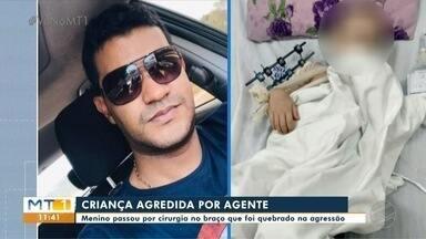 Criança agredida por agente teve que fazer cirurgia no braço - Criança agredida por agente teve que fazer cirurgia no braço.
