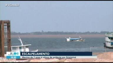 Menina de 7 anos é vítima de escalpelamento em Oriximiná, no oeste do Pará - Mais um caso de escalpelamento é registrado no estado.