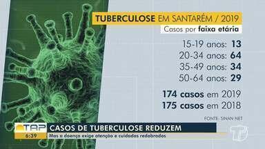 Diminuem os casos de Tuberculose em Santarém - Doença exige atenção e cuidados redobrados.