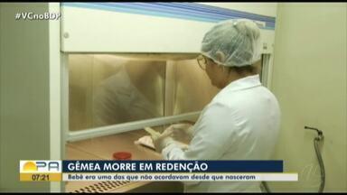 Gemêa morre após nascer em coma em Redenção - Gemêa morre após nascer em coma em Redenção