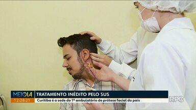Sede do primeiro ambulatório de prótese facial do país está no Paraná - O tratamento é inédito e oferecido pelo SUS.