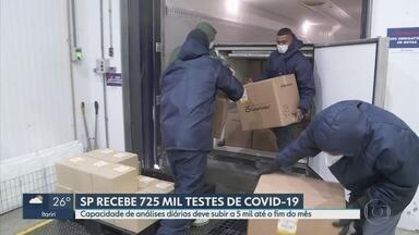 Com novos testes de Covid-19, Estado espera zerar fila de pacientes que aguardam resultado - Testes chegaram da Coreia do Sul e devem ser distribuídos em laboratórios.
