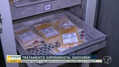 Hemopa começa a usar plasma em pacientes internados com Covid-19 em Santarém - O processo ainda é uma terapia experimental.