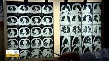 Quase 60% das vítimas da Covid-19 desenvolveram pneumopatia - Confira as notícias relacionadas à pandemia.