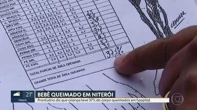 Bebê queimada em hospital municipal de Niterói tem 37% do corpo atingido - A bebê, internada no Hospital Municipal Getulinho, em Niterói, teve 37% do corpo queimado. O laudo aponta queimaduras de segundo grau por escaldamento.