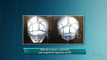 Bebê de 6 meses é internado com suspeita de agressão em Ponta Grossa