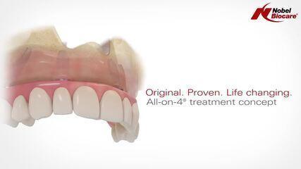 ALL-ON-4: a técnica reduz o tempo de tratamento e o trauma do paciente.