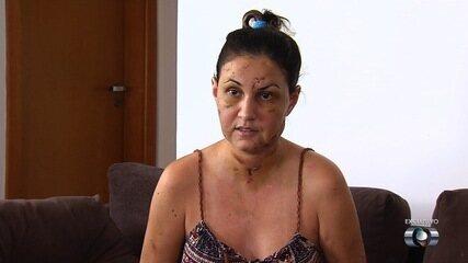 Estudante diz que foi agredida por namorado em motel: 'Disse que nós iríamos morrer'
