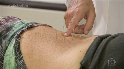 Acupuntura pode aliviar as dores provocadas pela hérnia de disco