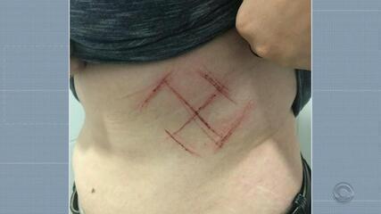 Jovem denuncia agressão e diz que foi marcada com canivete em Porto Alegre
