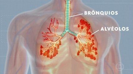 Médicos explicam como o novo coronavírus ataca os pulmões