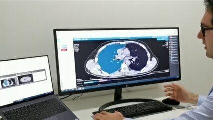 Pesquisadores tentam entender 'tempestade inflamatória' causada pelo coronavírus