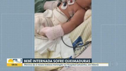 Bebê internada no Hospital Getulinho, em Niterói, aparece com queimaduras pelo corpo