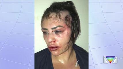 Influencer vítima de espancamento grava vídeo com relato de agressão