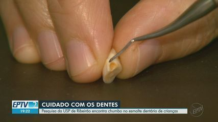 Pesquisa da USP de Ribeirão Preto encontra chumbo no esmalte dentário de crianças