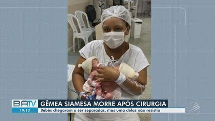 Uma das gêmeas siamesas que fizeram cirurgia de separação em Salvador morreu nesta sexta