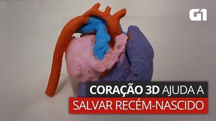 VÍDEO: Impressão 3D ajuda a salvar a vida de recém-nascido no RJ