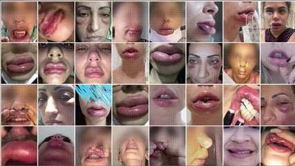 Vídeo mostra pacientes antes e depois de procedimento estético feito com dentista no RJ