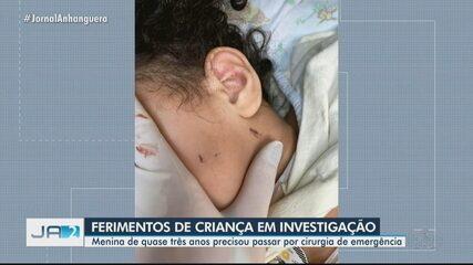 Polícia investiga se menina de 2 anos sofria agressões em casa, em Goiânia