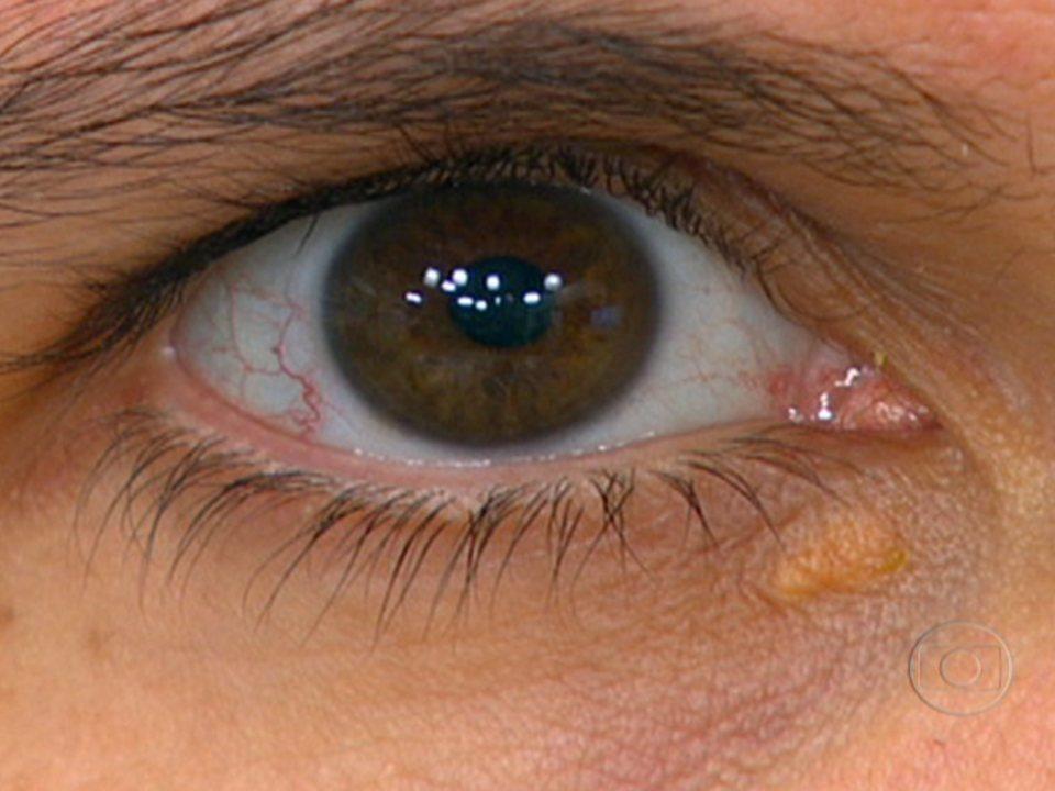 aba352ebd4943 Bem Estar   Mancha amarela perto dos olhos pode indicar colesterol alto    Globoplay