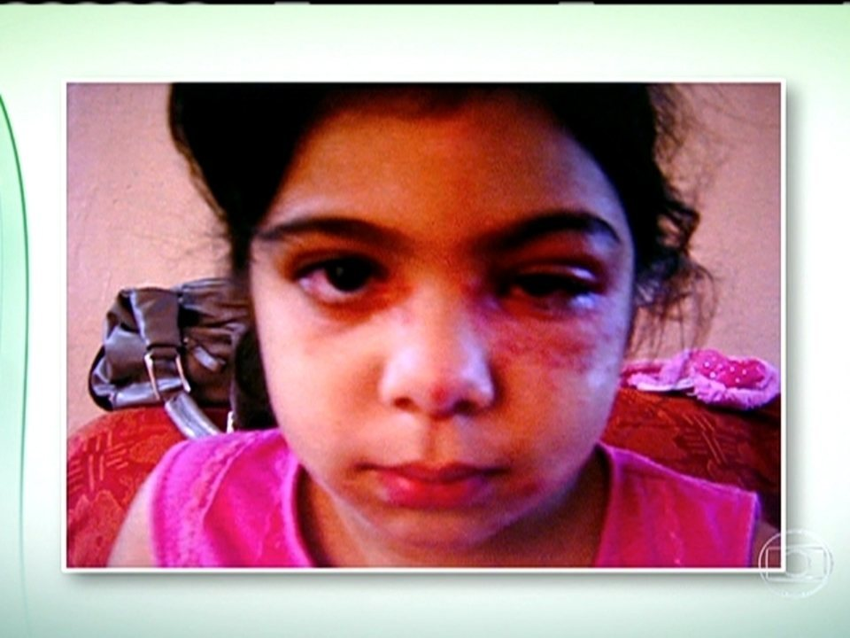 fotos de herpes zoster no rosto