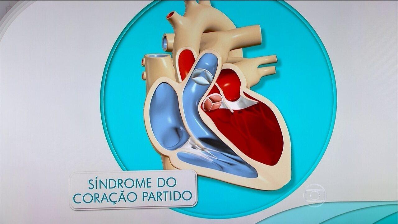 Síndrome do coração partido provoca sintomas parecidos com o do infarto