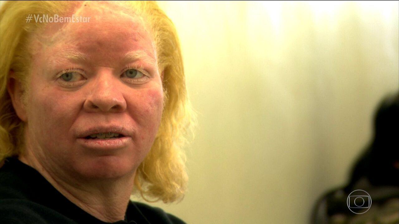 Atendimento especializado e gratuito para albinos é oferecido na Santa Casa de São Paulo