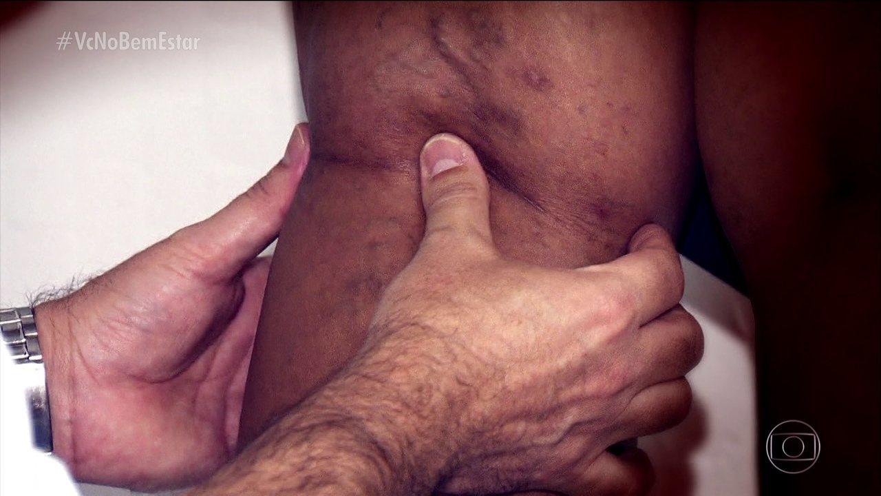 Conheça os sinais da trombose, doença que em 50% dos casos tem sintomas