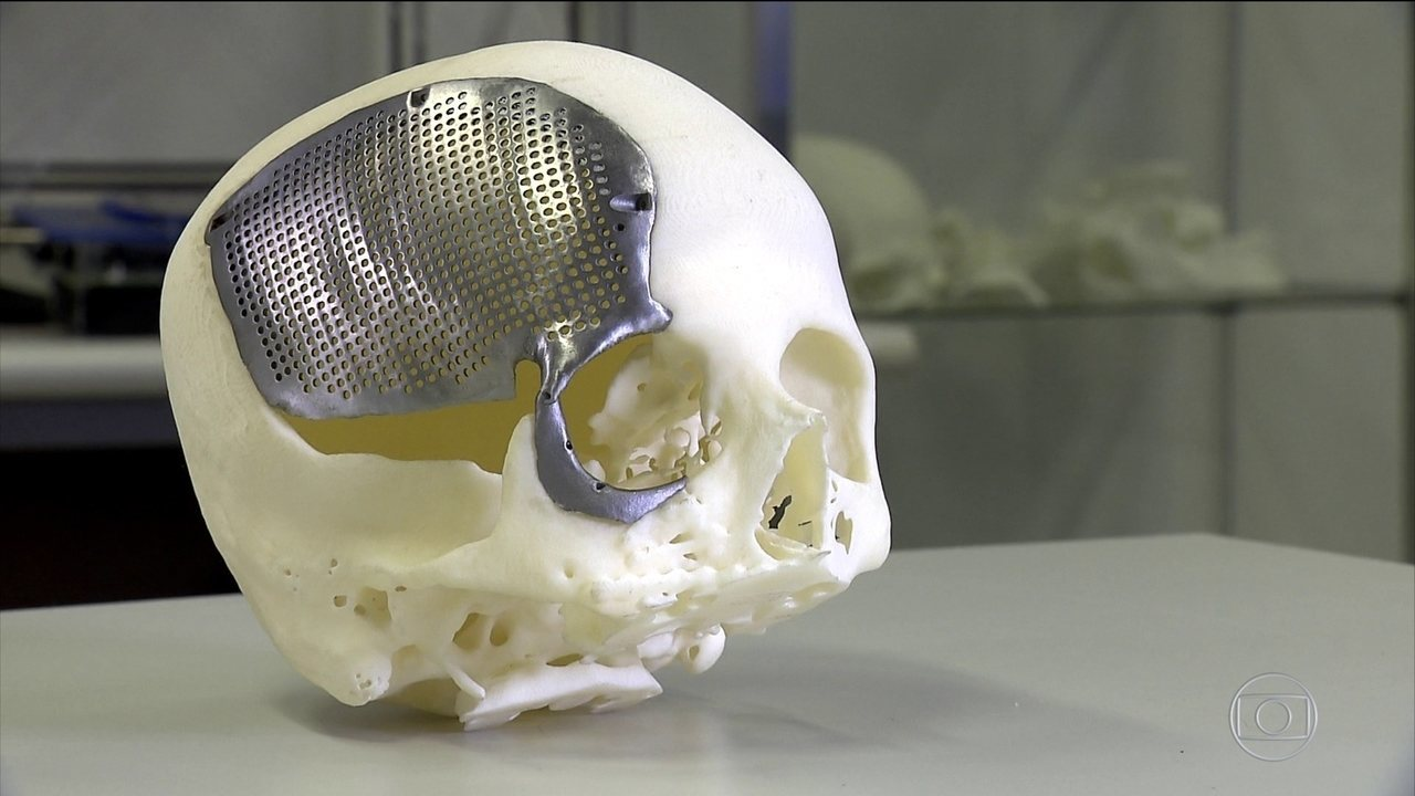 Anvisa estuda regulamentar prótese de crânio reduzidas no Brasil