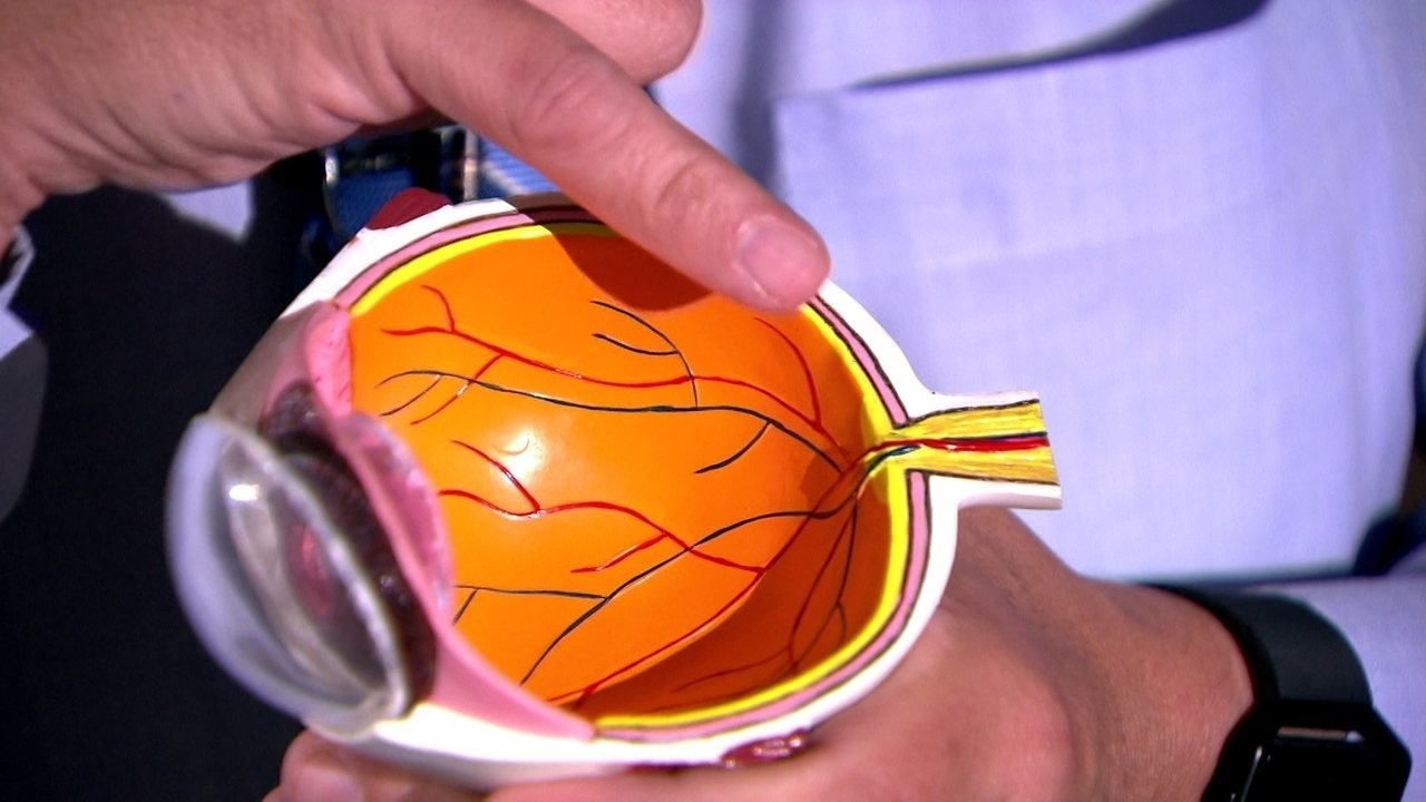 Médico Celso Afonso explica a lesão no olho do atacante Bruno Henrique, do Santos