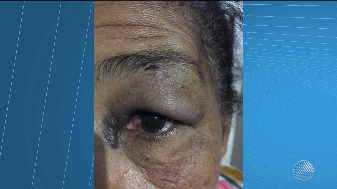 Idosa de 67 anos é agredida por cobrador em Luís Eduardo Magalhães no oeste do estado