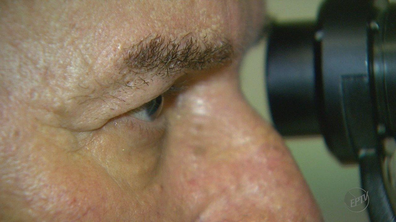 Pesquisadores da USP desenvolvem tratamento para doença que pode levar à perda da visão