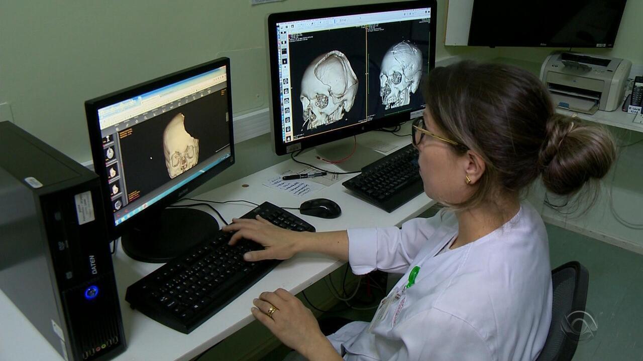 Impressora 3D têm ajudado médicos a salvar vidas