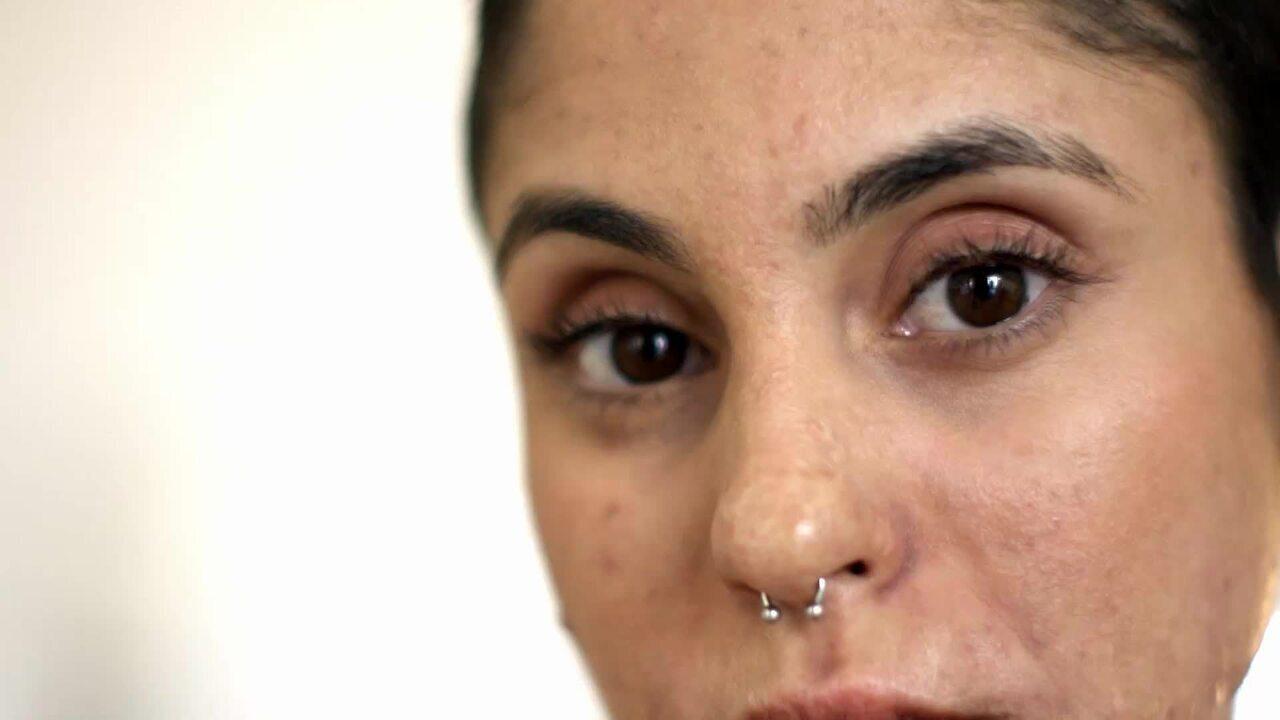 Um Outro Olhar - Conheça a história da modelo Amanda Carvalho