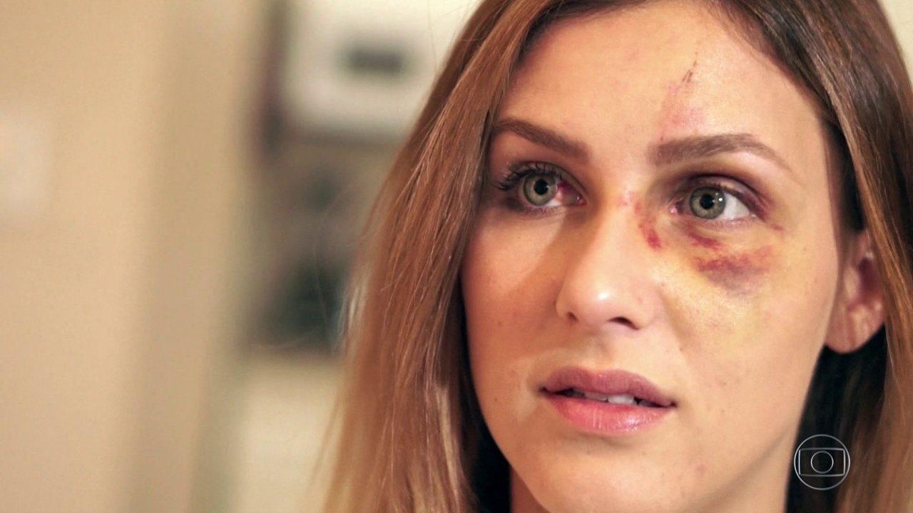 Brasileira agredida pelo ex-namorado nos EUA posta fotos e diz: 'Isso não é amor'