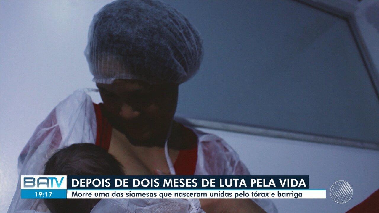 Morre uma das gêmeas siamesas que nasceram unidas pelo tórax e barriga em Salvador