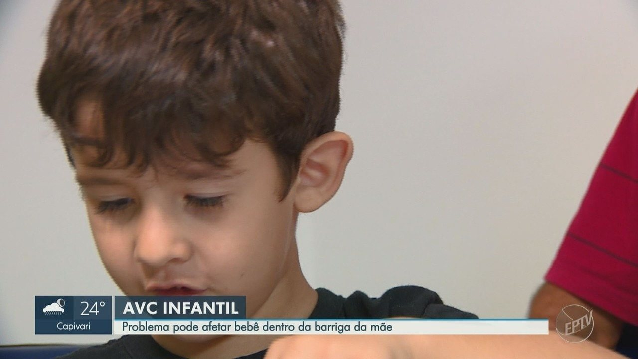 Cerca de 60 crianças recebem o diagnóstico de AVC todos os anos na Unicamp