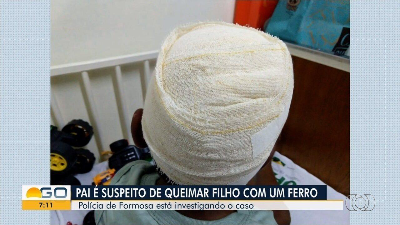 Menino que diz ter tido a cabeça queimada pelo pai com ferro segue internado em Formosa