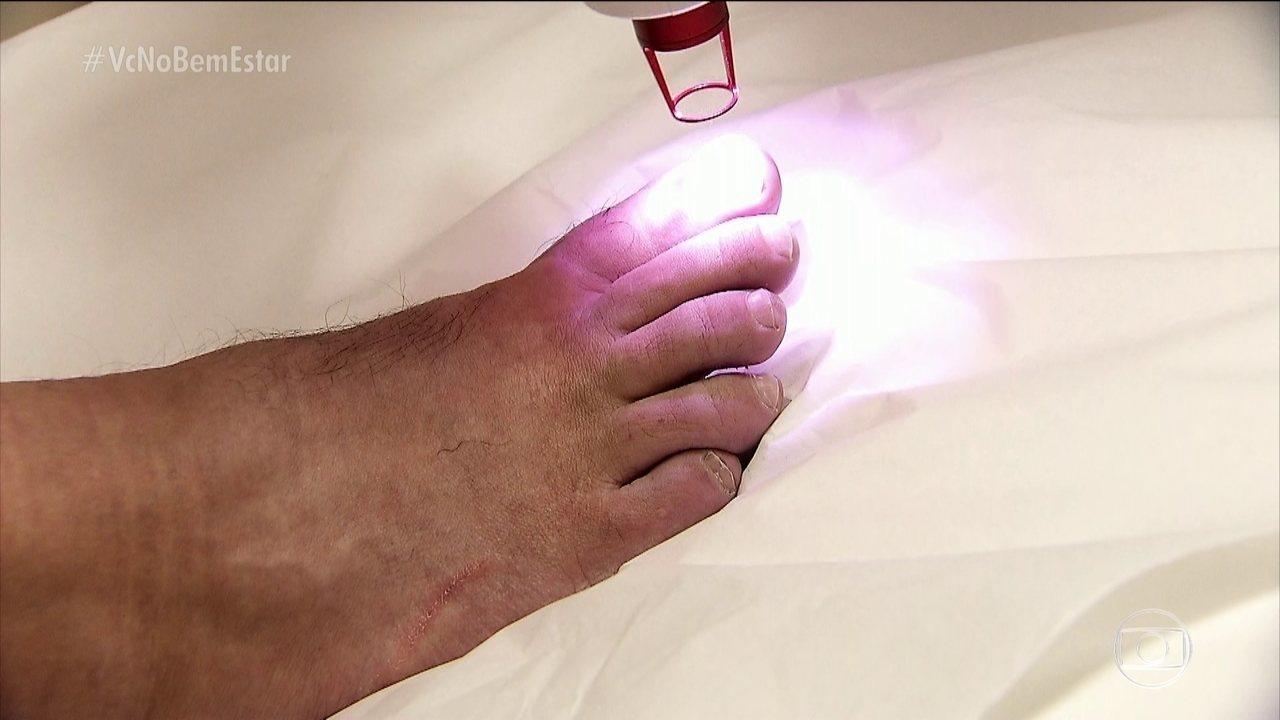 Laser é opção para o tratamento de micose