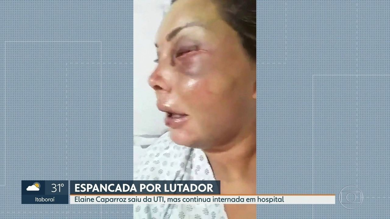 Mulher espancada por lutador de jiu-jitsu deixa a UTI, mas continua internada