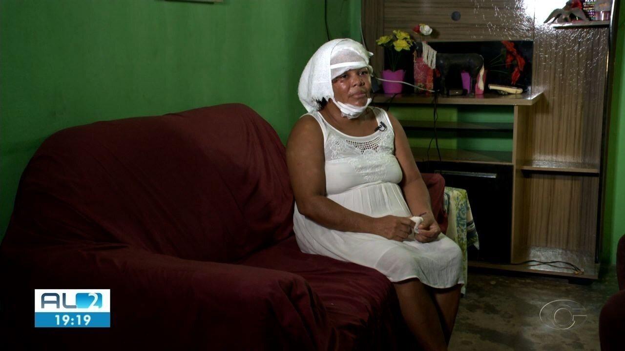Uma das irmãs atacadas com ácido em Marechal Deodoro recebe alta