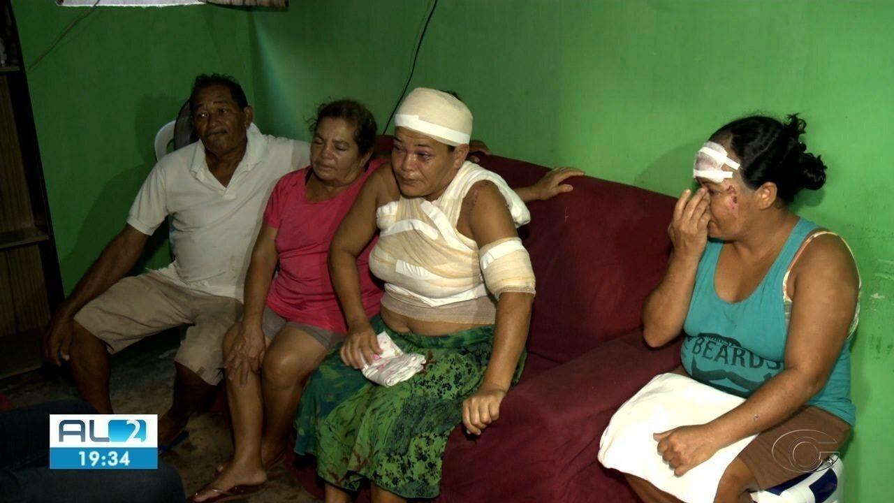 Mulher agredida com ácido pelo ex-companheiro recebe alta