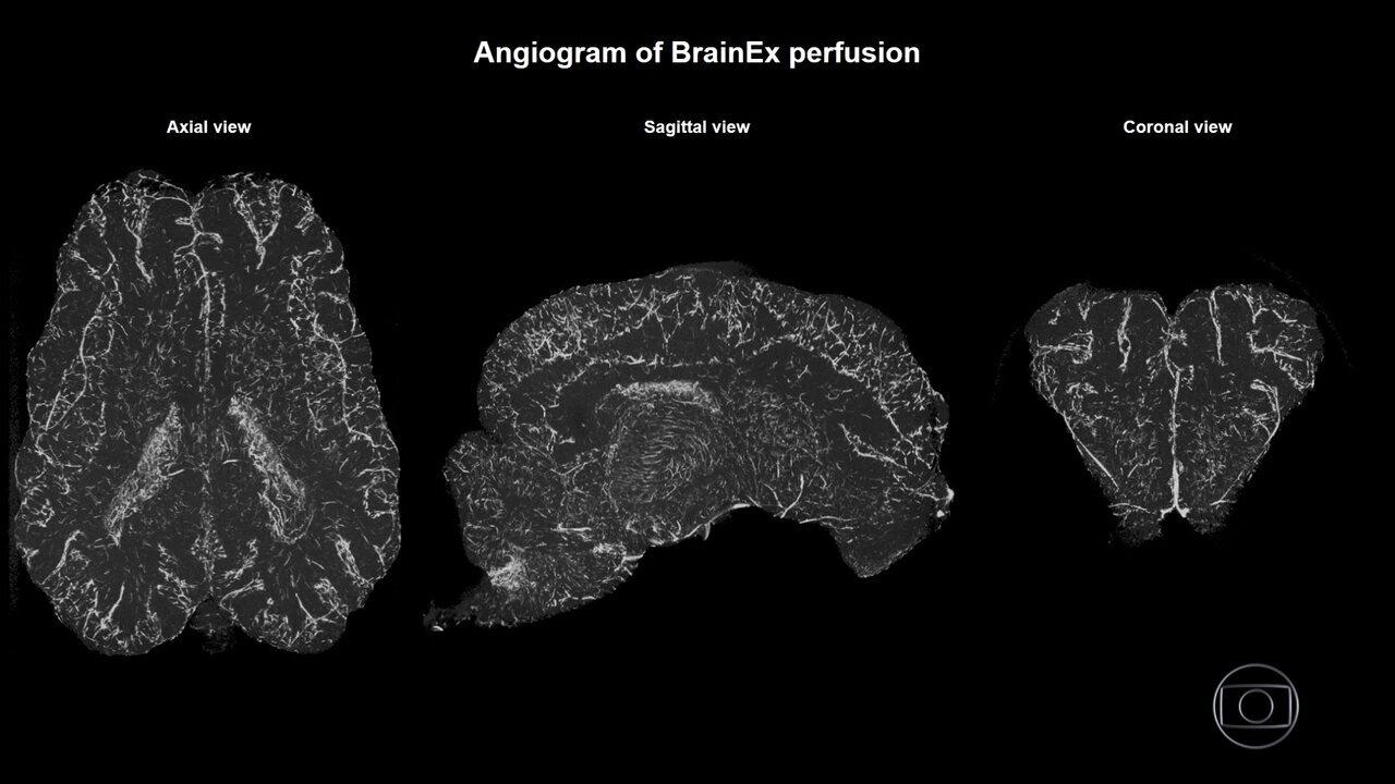 Cientistas americanos anunciam pesquisa que pode mudar o que se sabe sobre morte cerebral