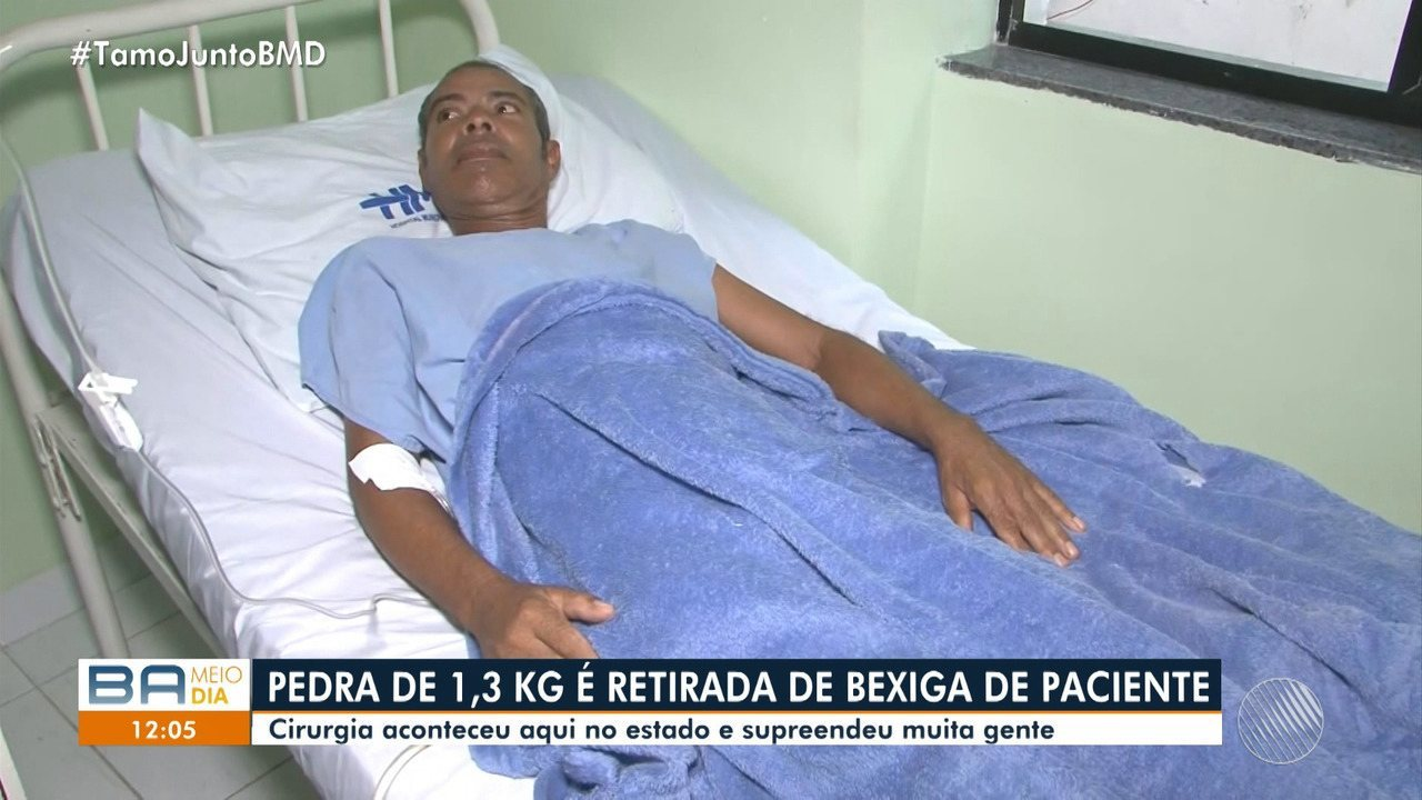 Pedra de 1,3 kg é retirada da bexiga de um paciente em hospital de Salvador