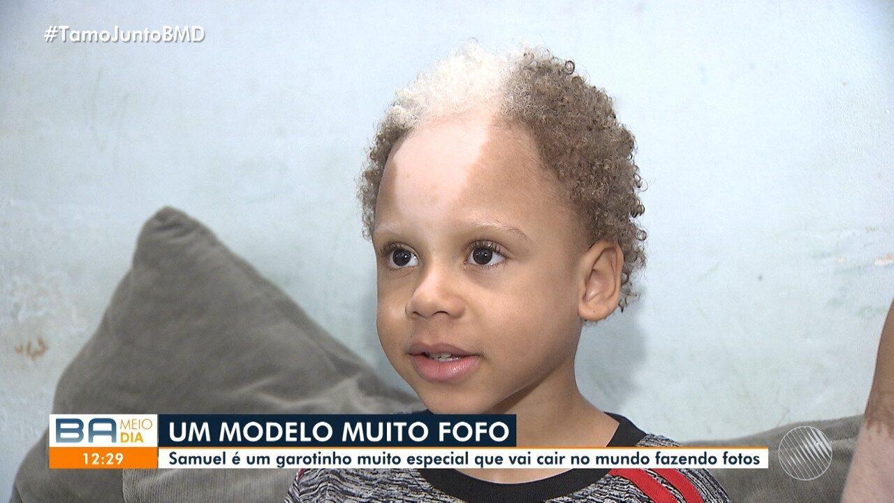 Resultado de imagem para Aos 5 anos, baiano com condição genética rara faz sucesso em fotos